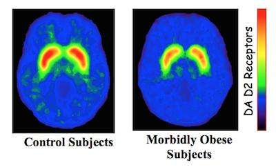 Image of brain scans of control and Obese subjects showing reduced DA D2 receptor activity from control